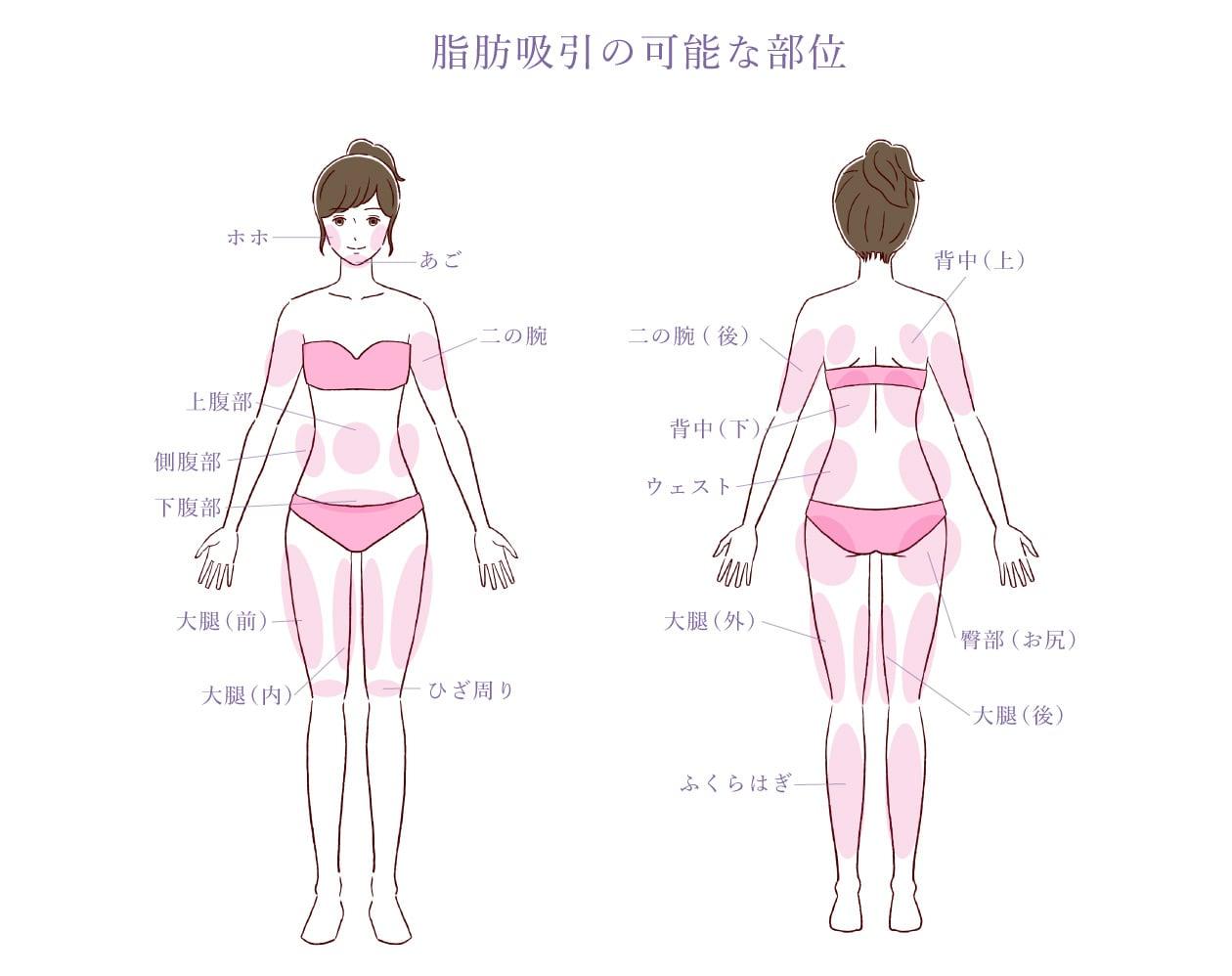 脂肪吸引の可能な部位