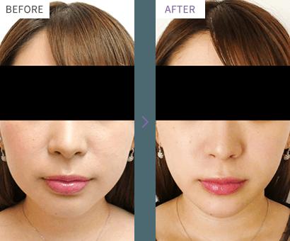 小顔・輪郭治療の症例