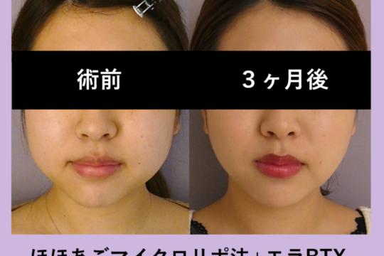 小顔マイクロリポ法 ~可愛い系から綺麗系に??~
