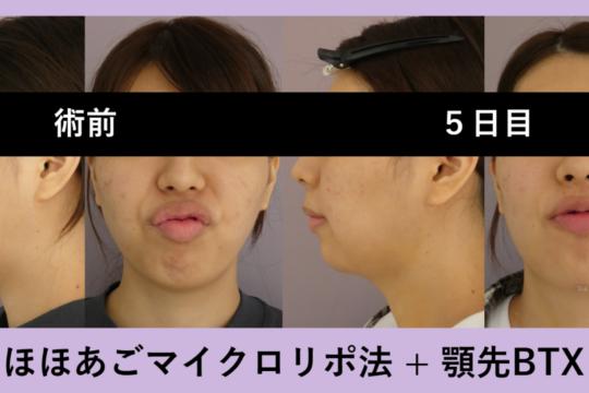 小顔マイクロリポ法 ~顎先ボトックスは大人気オプションです~