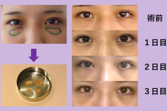 目の下のクマ治療 ~脂肪取り・最小ダウンタイム~
