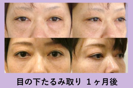 目の下のクマ治療 ~目の下たるみ取りの術後1ヶ月~