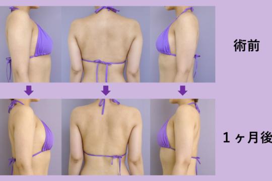 二の腕・肩 脂肪吸引 ~綺麗なラインに仕上げます~