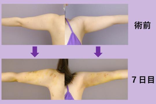 二の腕・肩・付け根 脂肪吸引 ~ダウンタイムはこんな感じです~
