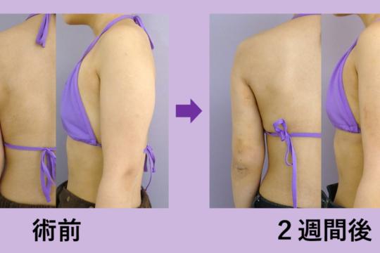 二の腕・肩・付け根 脂肪吸引 ~2週間後はこんな感じです~