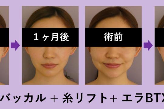 『バッカル』+『糸リフト』+『エラBTX』の合わせ技!