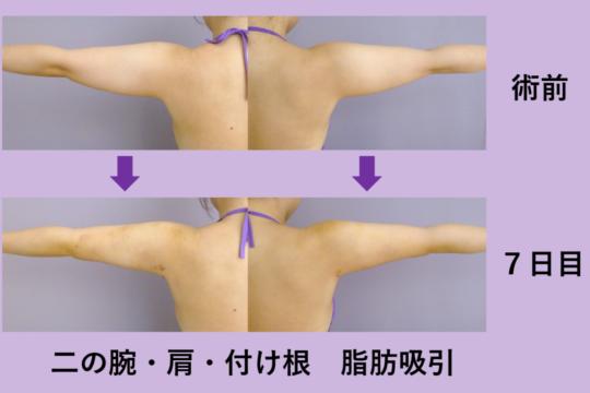 二の腕・肩・付け根 脂肪吸引 ~ボディデザインのプロによる脂肪吸引~