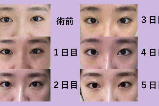 目の下のクマ治療 ~リアルな術後経過お見せします~