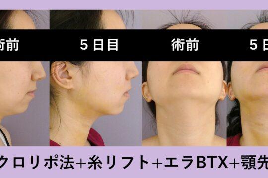 顔の複合施術 ~どんな組み合わせでも最小ダウンタイムです~