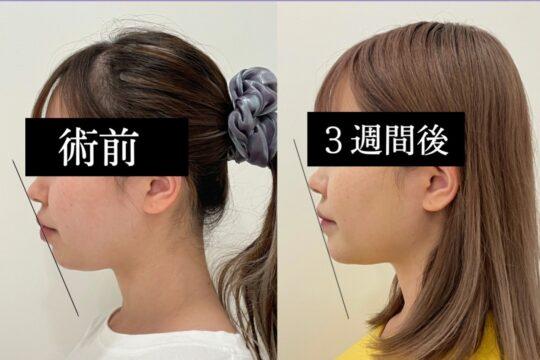 顎プロテーゼ施術