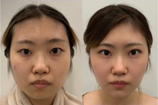 小顔施術・二重整形